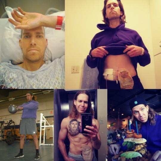 Mic_flare ostomy collage